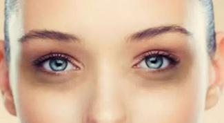 Как устранить темные круги под глазами