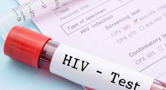 Как заражаются ВИЧ