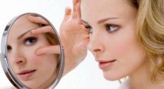 Как избавиться от синяка под глазом за один день