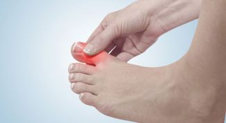 How to treat a bruised toe