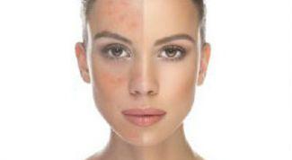 Розацеа на лице: лечение народными средствами