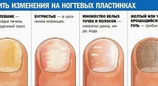 Диагностика организма через ногти