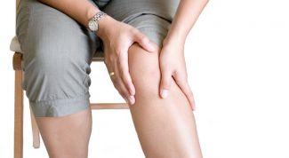 Заболевание суставов: анкилоз