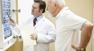 Миелома. Общая информация о заболевании