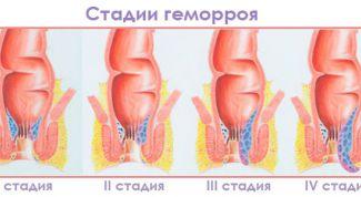 Причины и лечение геморроя