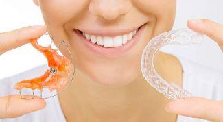Как просто и незаметно выровнять кривые зубы без брекетов