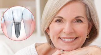 Какие зубные импланты поставить: обзор видов и брендов