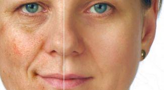Пять плохих привычек, вредящих красоте и молодости кожи