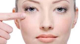 Как избавиться от морщин вокруг глаз после 25 лет