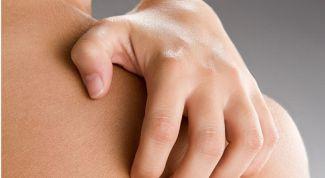 Лишай у людей: симптомы и лечение
