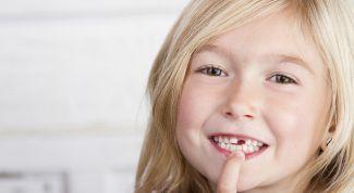 К чему снятся больные и выпадающие зубы