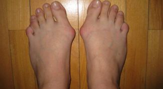 How to remove the bone on the big toe