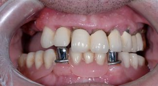 Сравнение длительного выживания имплантатов и эндодонтически леченых зубов