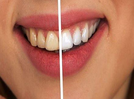 Можно ли чистить зубы содой пищевой для отбеливания