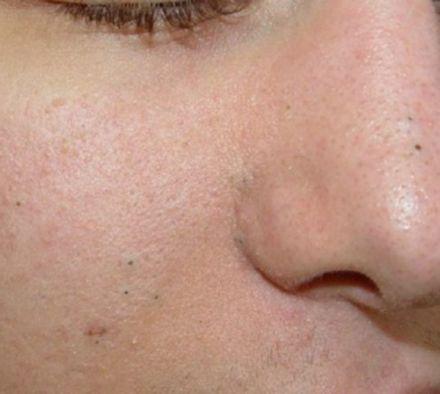 Чистка лица от черных точек: простой способ