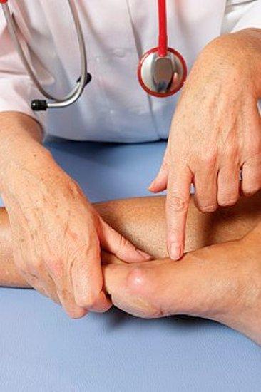 Как избавиться от шишек на пальцах ног
