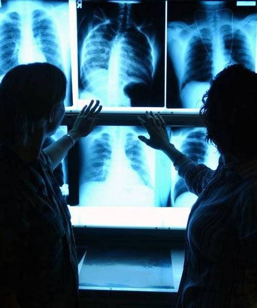 Как читать рентгеновские снимки