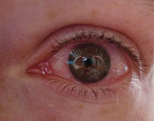 В домашних условиях лечить покраснение глаза 413