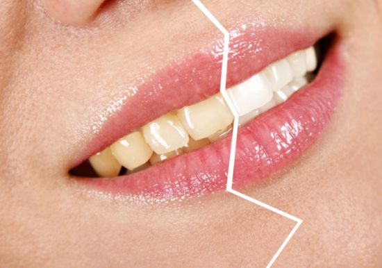 Отбеливание зубов юзао