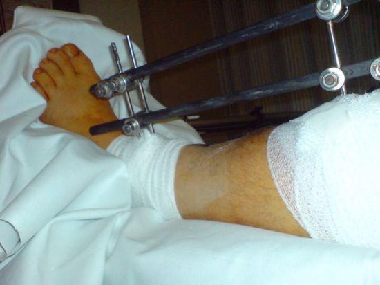 особых условиях разработка коленного сустава после снятия гипса распариванием Санкт-Петербурге для оплаты