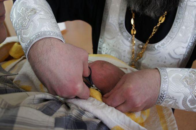 Уход после обрезания у мужчин