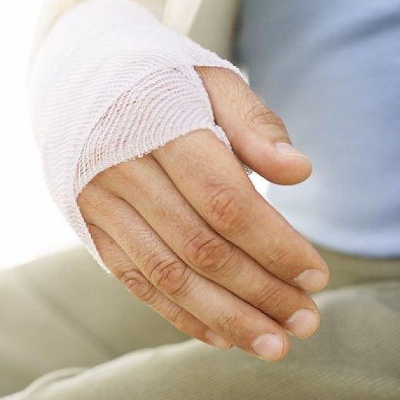 Как снять отек при переломе руки