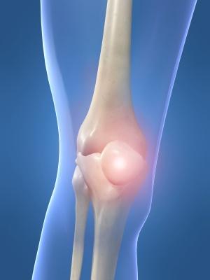 Как справиться с артритом