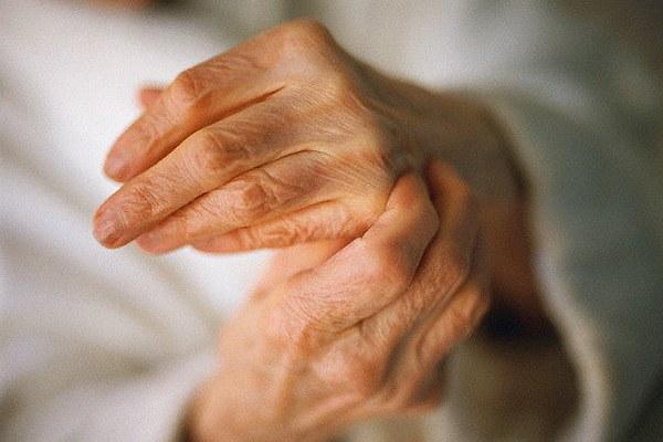 Как лечить артрит рук