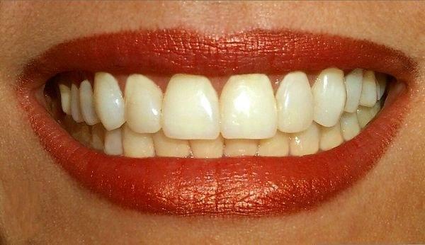 How to glue dentures