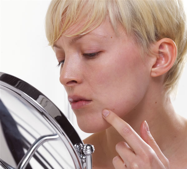 How to remove pimples on chin