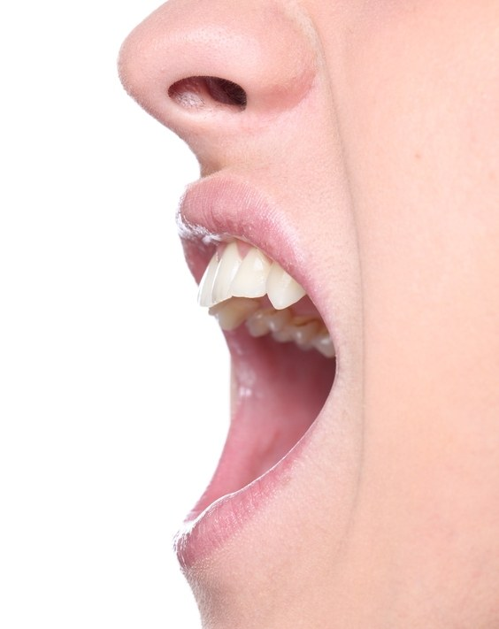 How to fix an overbite adults