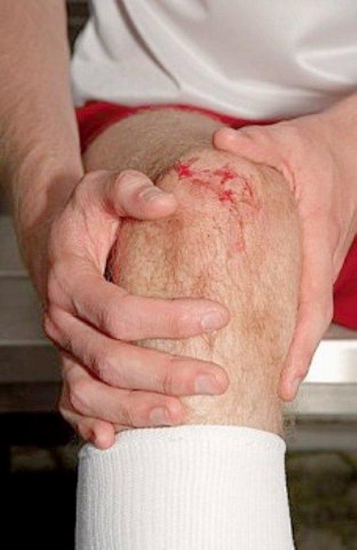 Как лечить коленный синовит
