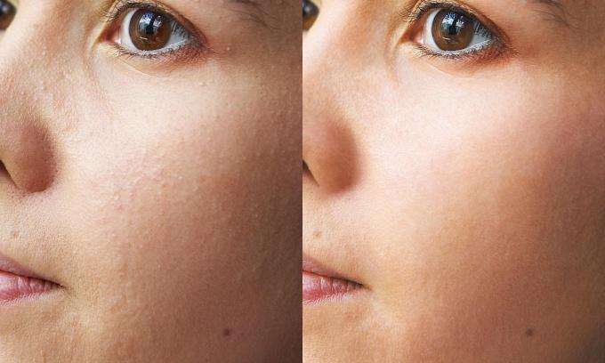 Как делать ретушь в Фотошопе