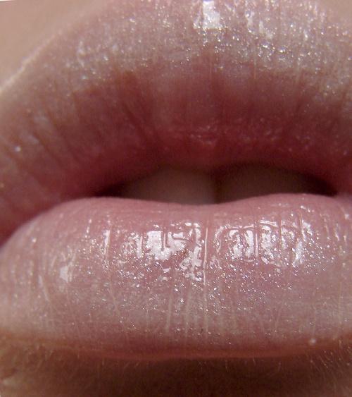 Как убрать опухоль на губе