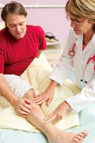 Как лечить нарыв на ноге