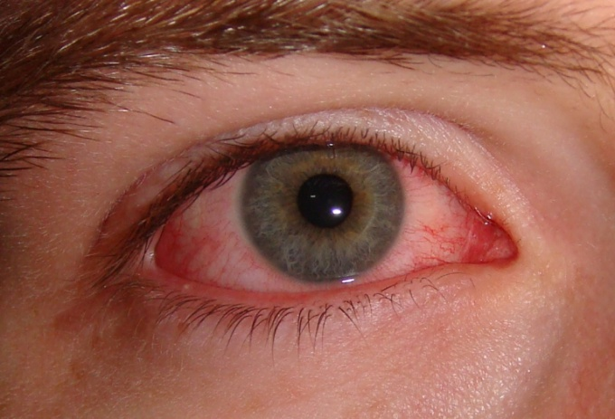 How to get rid of red blood vessels in the eyes