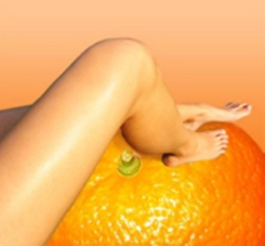 How to remove cellulite in the home