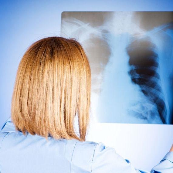 Как определить пневмонию
