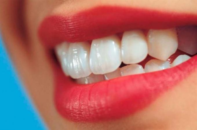Почему зубы чернеют