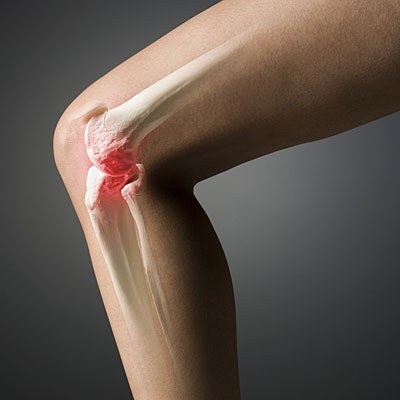 How to remove swelling of the knee