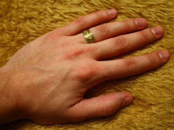 Почему трясутся руки