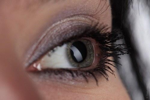 Как лечить круги под глазами