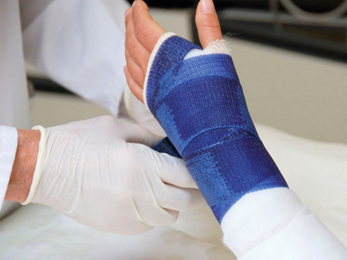 What to eat after a fracture