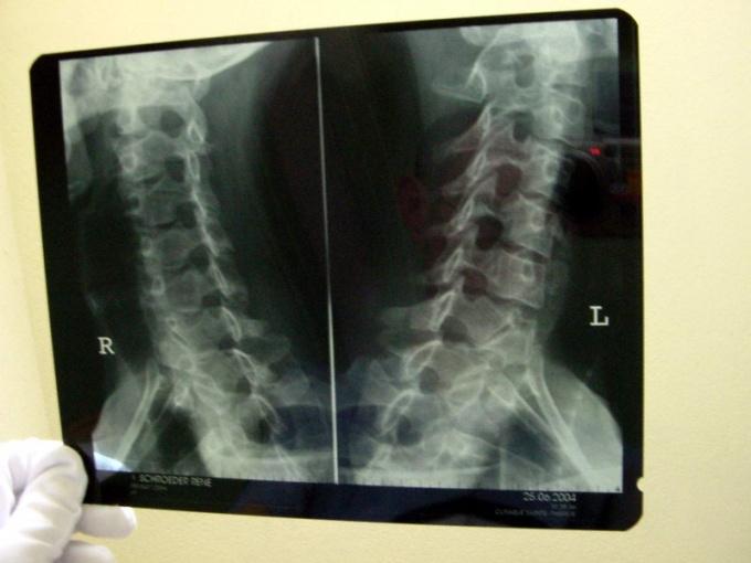 Как делать рентген позвоночника