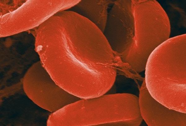 Как уменьшить гемоглобин
