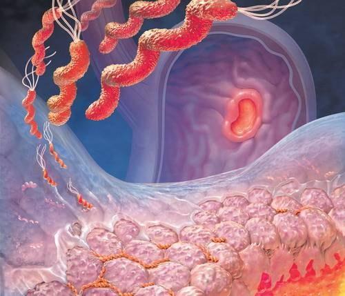 Как нормализовать кислотность желудка