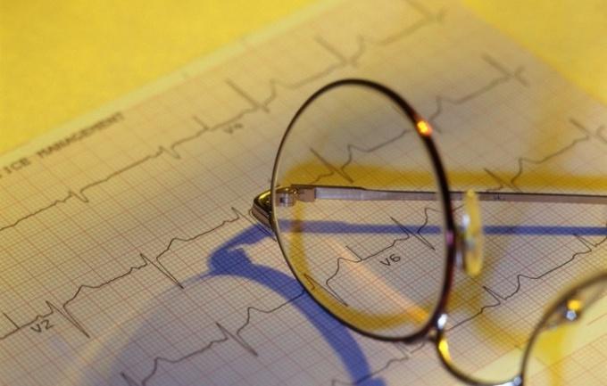 Как разобраться в результатах кардиограммы сердца