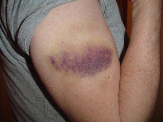 How to treat sprains and bruises