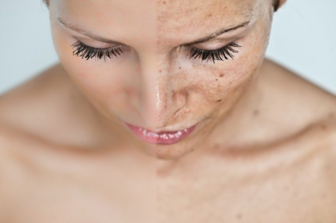 How to treat ringworm on the face