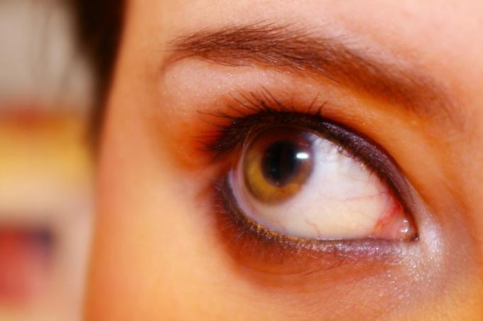 Почему глаза карие